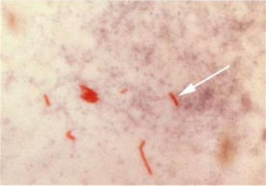 El primer caso de tuberculosis humana se produjo hace 9.000 años ...
