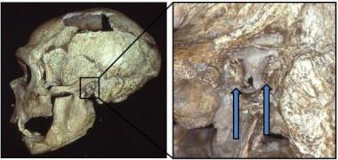 El cráneo de un hombre Neandertal con exóstosis (oído de nadador) /Erik Trinkaus