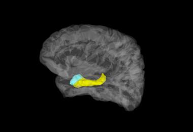 <p>Imagen cerebral en la que aparecen coloreadas la amígdala (azul) y el hipocampo (amarillo). / Stephan Moratti</p>