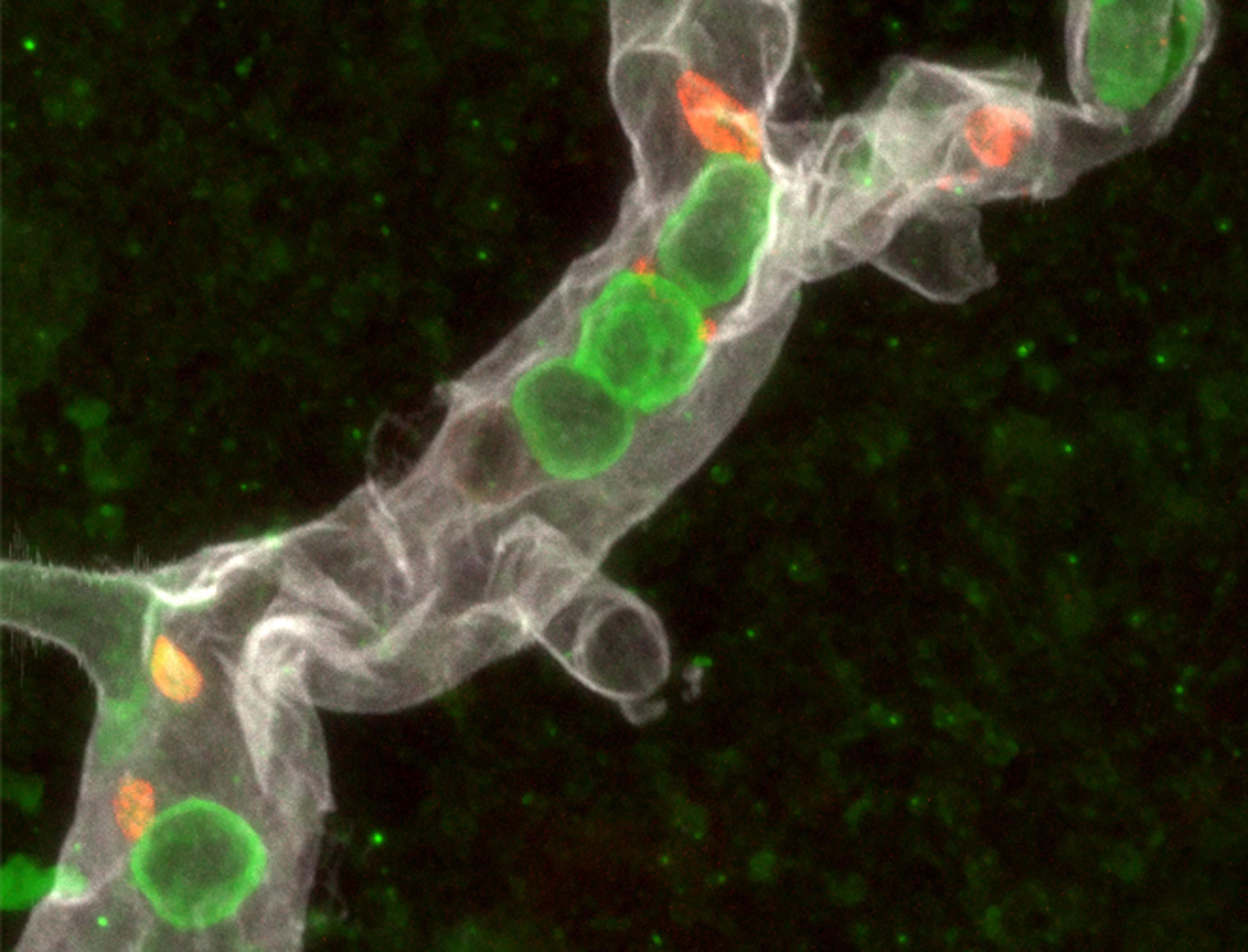 Los glóbulos blancos 'escanean' la sangre para provocar ictus