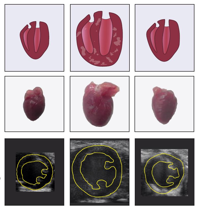 Un nuevo fármaco optimiza el tratamiento de la insuficiencia cardiaca