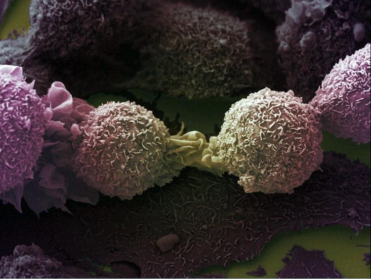 Una técnica de laboratorio predice la gravedad del cáncer