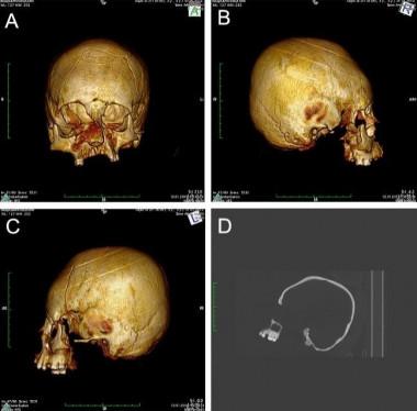 Hallan cráneos con deformación artificial de hace 1.500 años en Europa
