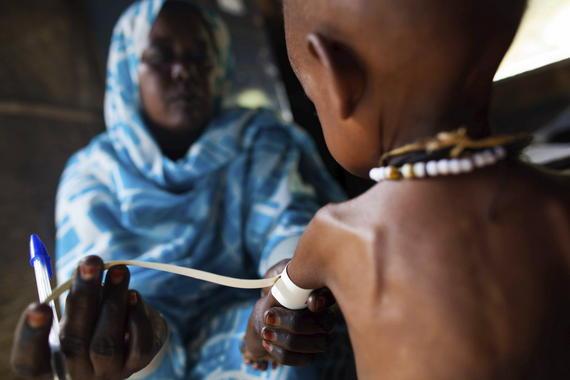 Los daños de la desnutrición duran toda la vida y se transmiten a los hijos