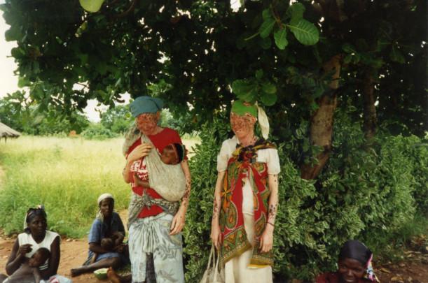 Gemelos mozambiqueños con albinismo oculocutáneo / Giovanna Luccardi Sirugo