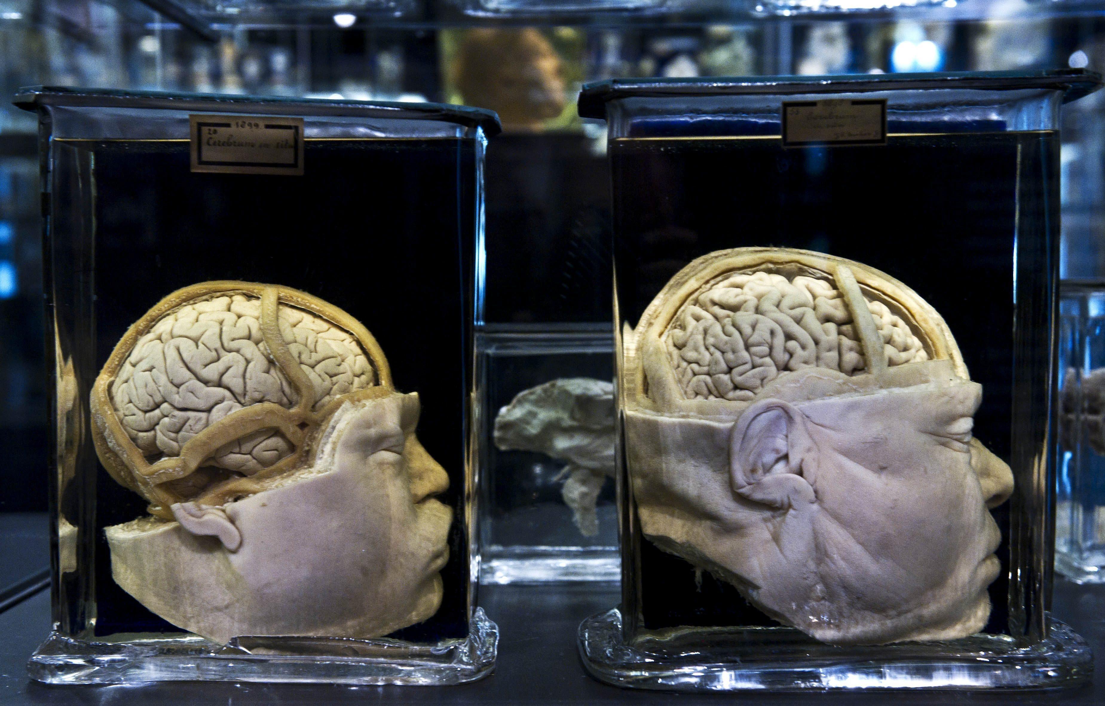 Los cerebros dotados con una supermemoria también crean recuerdos falsos