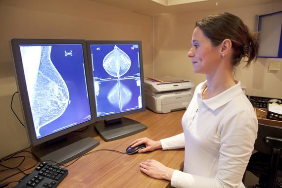 Científicos de Salamanca identifican una nueva diana terapéutica contra el cáncer de mama más agresivo