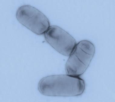 <p>La salmonella enterica es uno de los principales patógenos entéricos tanto en países desarrollados como en regiones en vías de desarrollo. / UB</p>