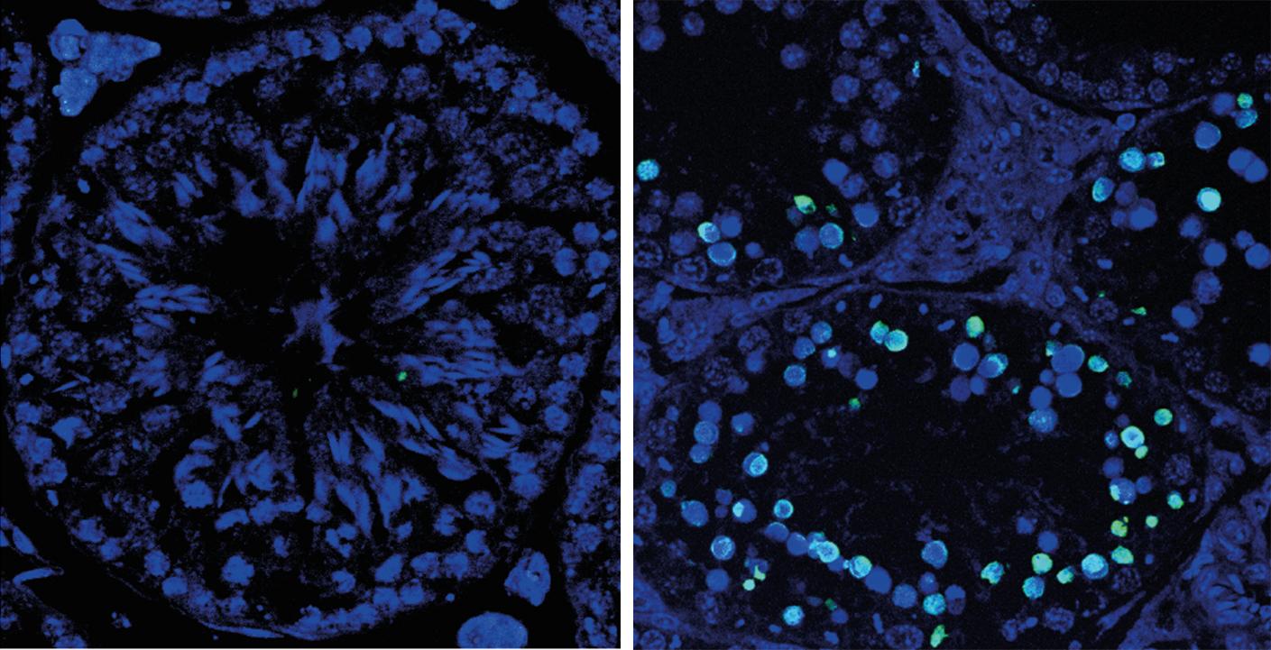 Descubren una proteína imprescindible para formar óvulos y espermatozoides