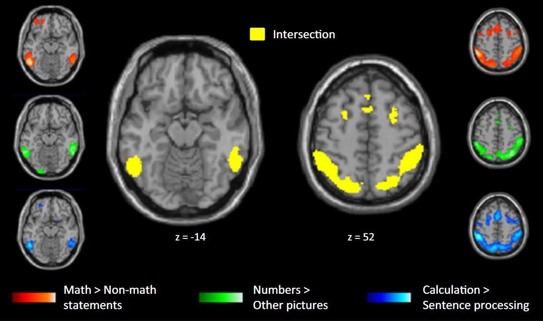 Detectan regiones del cerebro que se activan en los matemáticos ...