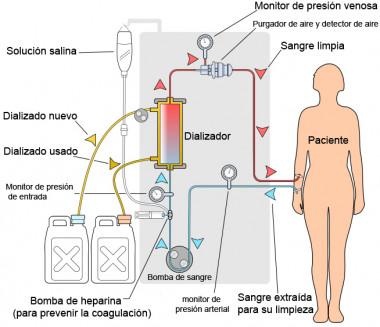 El ácido cítrico en diálisis previene la calcificación vascular