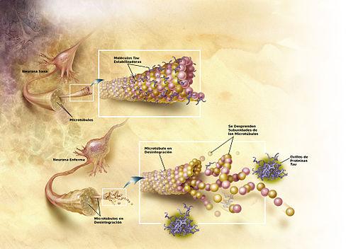 El alzhéimer podría estar relacionado con infecciones por hongos