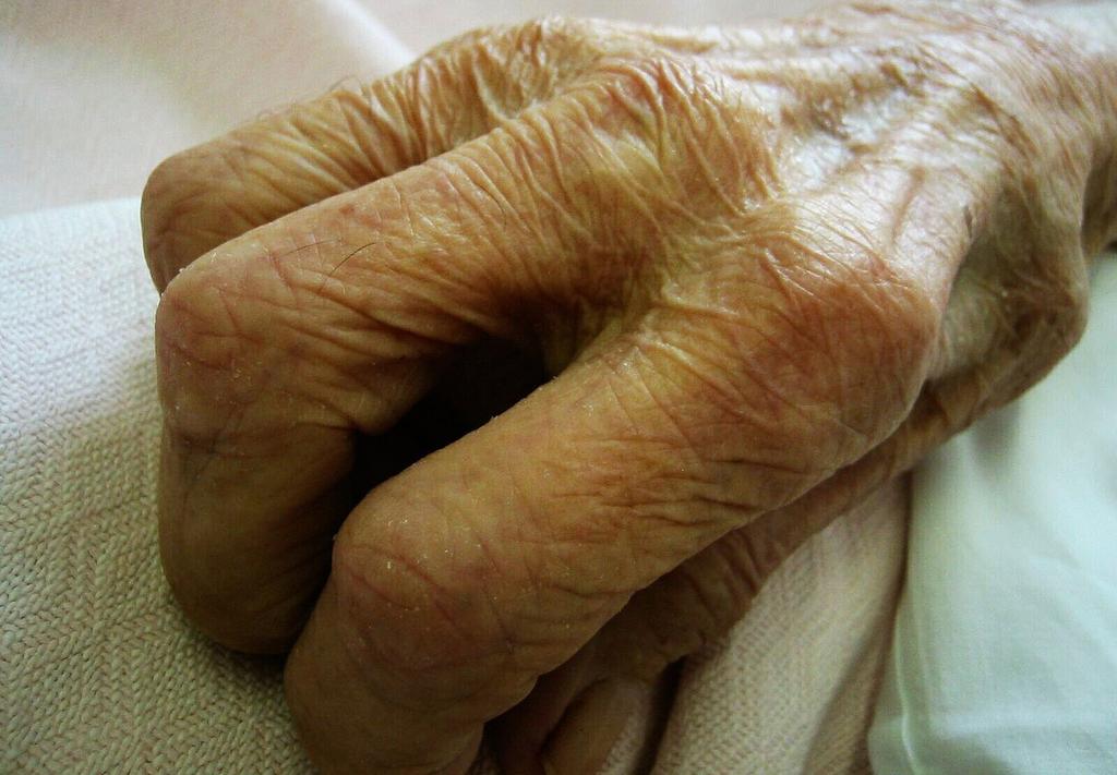 El alzhéimer y el párkinson podrían detectarse en la piel