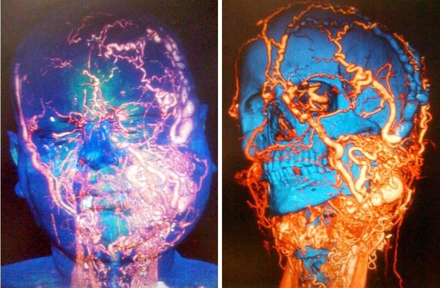El hospital Vall d'Hebron realiza con éxito un nuevo trasplante de cara