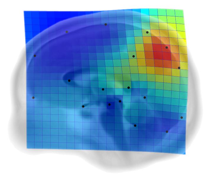 El precúneo, clave en la evolución cerebral de nuestra especie