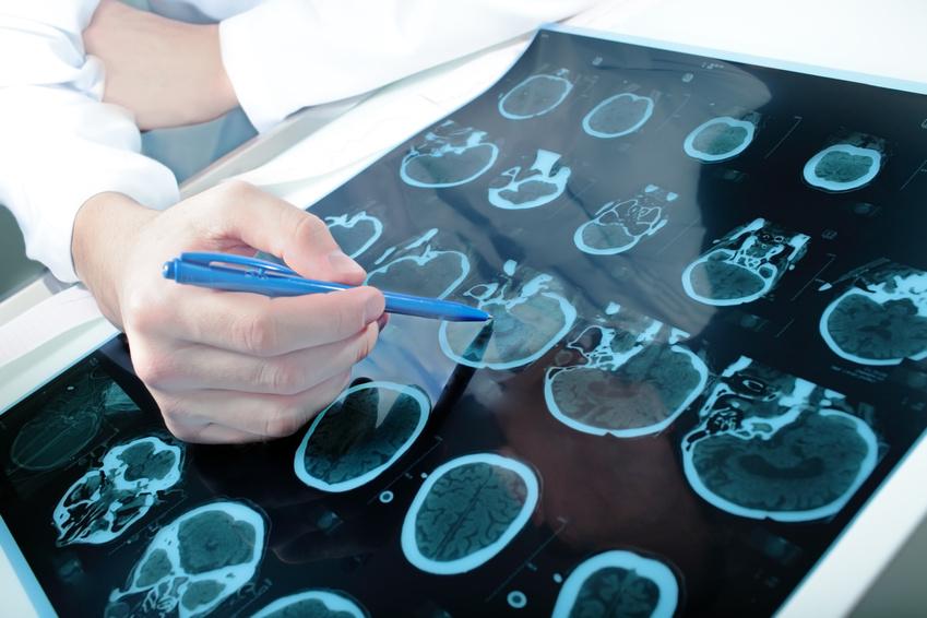 Identificada una proteína que amplía la ventana terapéutica contra el ictus