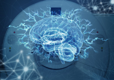 <p>A team of researchers from the European MULTI-LATERAL project has used magnetic resonance imaging to study brain areas in vivo and has refuted the theory of&nbsp;language lateralization. /&nbsp;©Fotolia</p>