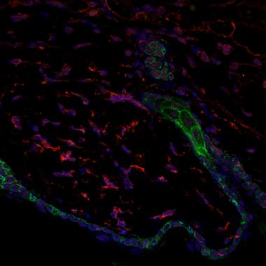 <p>Imagen de microscopía confocal de la barrera de la piel (en verde), folículo piloso (en verde) y los fibroblastos (en rojo). En azul, los núcleos celulares. / Marion Salzer, IRB Barcelona</p>