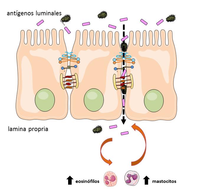 Las digestiones pesadas causan alteraciones similares a las del síndrome del intestino irritable