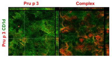 """<p>Localización del receptor celular CD1d (verde) y la proteína Pru p 3 (rojo), sin ligando (recuadro """"Pru p 3"""") o con ligando (recuadro """"Complex""""). / Imagen al microscopio confocal (CBGP).</p>"""