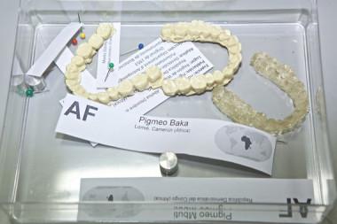 <p>Muestras moldes dentales de pigmeos Baka obtenidasen Le Bosquet (Camerún). / Roberto Ruiz / UA</p>