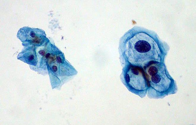 Los hombres con VIH presentan altas tasas de infección por papiloma en boca, ano y pene