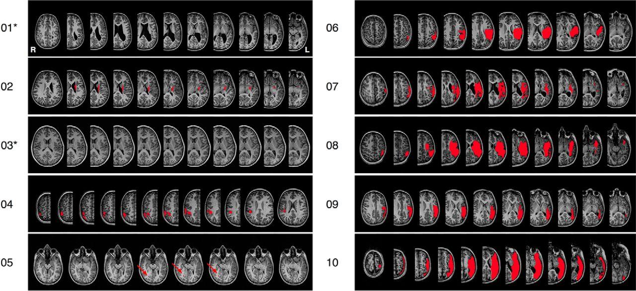 Los niños recuperan la funcionalidad cerebral del área afectada tras un ictus