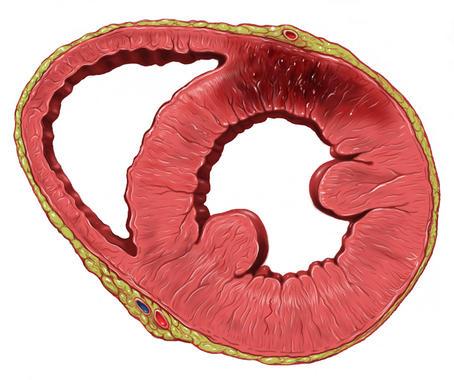 Los stents biodegradables, eficaces en infarto agudo de miocardio