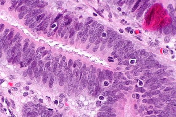 Mejoran la predicción del riesgo de cáncer hereditario