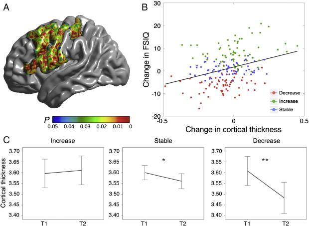 Modificaciones en el espesor de la corteza cerebral se relacionan con cambios en la inteligencia