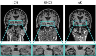 <p>A partir del análisis de texturas 2D y 3D del hipocampo, ALTEA extrae biomarcadores de alzhéimer. / UPV</p>
