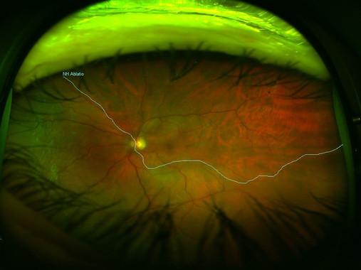 """<p/>Desprendimiento de retina. / Amaris5"""" /><span style="""