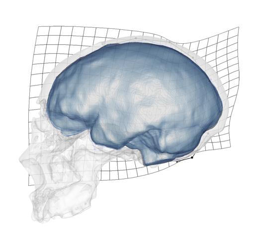Presentan las limitaciones anatómicas y funcionales del cráneo de los neandertales