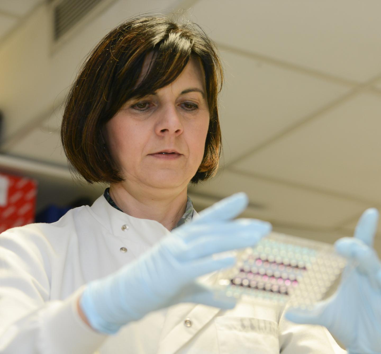 Un examen de orina permite detectar el cáncer de páncreas en etapas tempranas