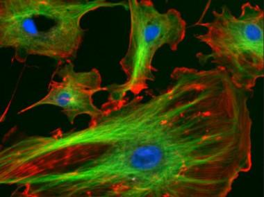 "<p>Células endoteliales con el núcleo teñido de azul por un marcador fluorescente. / <a href=""http://rsb.info.nih.gov/ij/images/"" target=""_blank"">Wikipedia</a></p>"