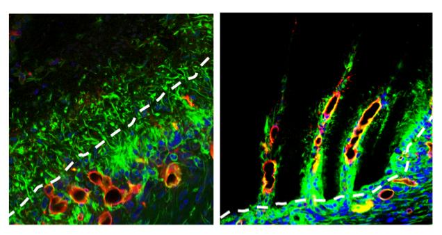 Un nuevo implante ayuda al cerebro a autorregenerarse