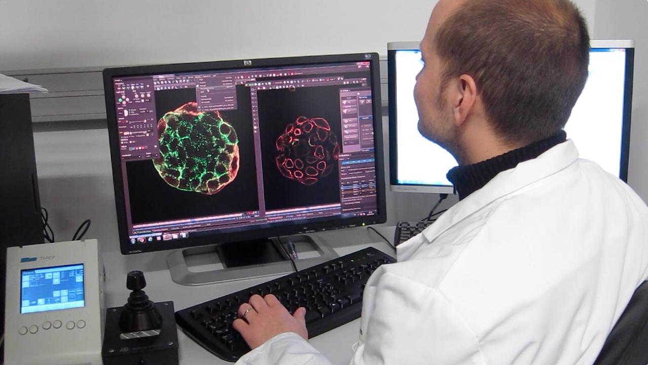 Un nuevo mecanismo de comunicación celular promueve la metástasis en cáncer