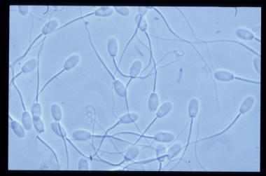 Un nuevo sistema informático determina la fecundidad del esperma de ...